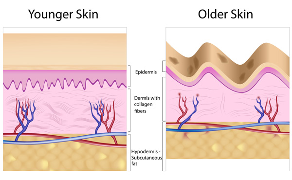 Aging-and-Deterioration-of-Collagen
